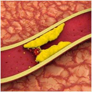 Холестерин лечение народными средствами